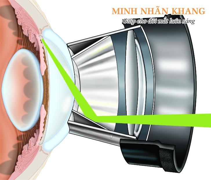 Phẫu thuật laser trabeculoplasty trong điều trị bệnh Glocom